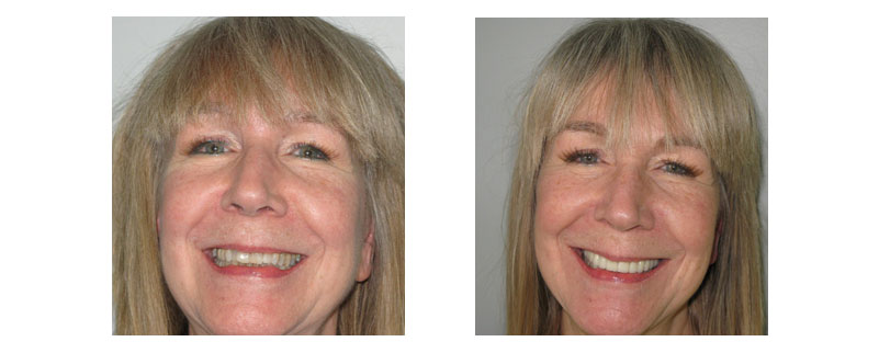 Before and after cosmetic dentistry case