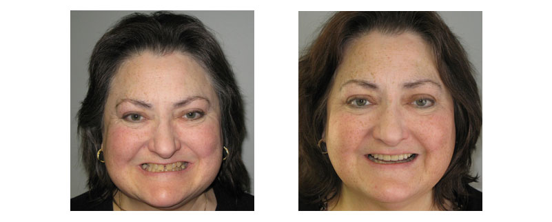 Before and after smile gallery case