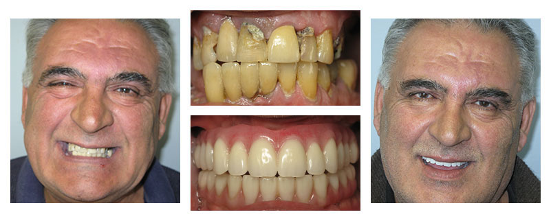 Huge transformation from restorative and cosmetic dentistry