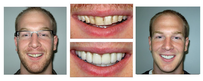 Check out the incredible transformation made from Dr. Niki Cochran, cosmetic dentist Lakewood Ohio