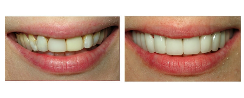 Need cosmetic dentist Lakewood Ohio? Check out our Smile Gallery to see the incredible transformation.