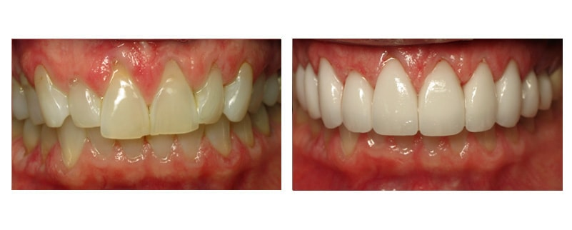 Before and after case from Nikki Cochran DDS