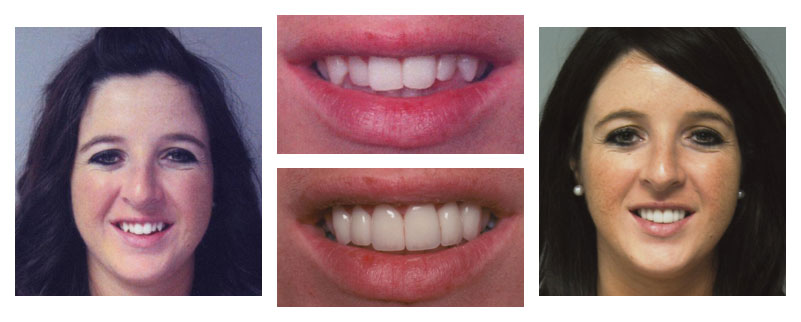 Before and after case from Dr. Niki Cochran