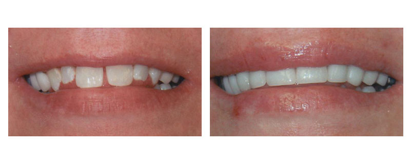 Dr. Cochran's before and after case