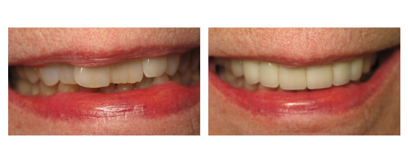 Before and after cosmetic dentistry case from Lakewood, Ohio