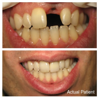 Dental Implants are part of our Restorative Dentistry Lakewood Ohio. This is an actual patient of a dental implant patient.