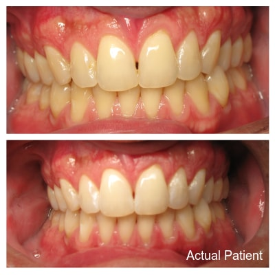 Teeth Whitening can brighten your smile in as little as one appointment.