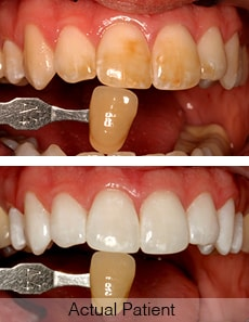 A whitening comparison of an actual patient before and after teeth whitening