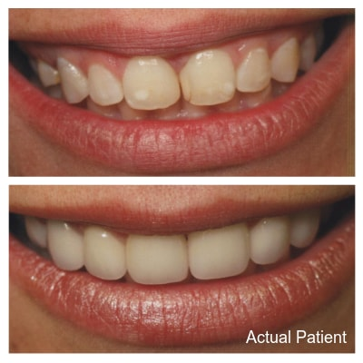 Porcelain veneers can completely change the look of your smile.