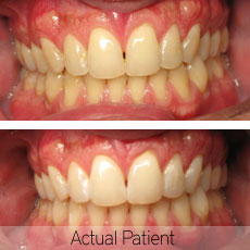 An actual patient before and after teeth whitening