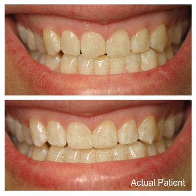 At Comfort Dental Group, metal-free fillings are standard at our practice.
