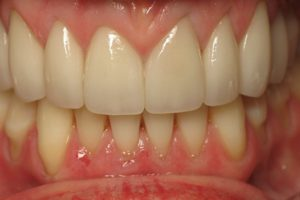 Actual Smile Design Patient at Comfort Dental Group