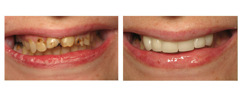 Before and After: Lela